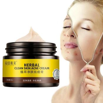 Herbs Face Cream Anti Acne Scar Face Cream Oil-control Repair Cream Care Face Acne Care Skin Whitening Cream Q8K9 d ran wonder cream face