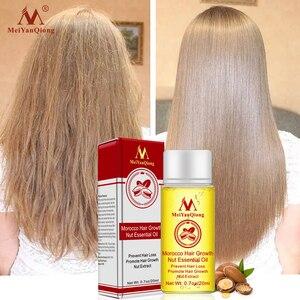 Image 1 - Schnelle Leistungsstarke Haar Wachstum Essenz Haarausfall Produkte Ätherisches Öl Flüssigkeit Behandlung Gegen Haarausfall Haarpflege Produkte 20ml