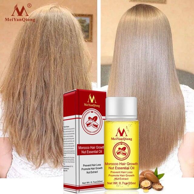 Schnelle Leistungsstarke Haar Wachstum Essenz Haarausfall Produkte Ätherisches Öl Flüssigkeit Behandlung Gegen Haarausfall Haarpflege Produkte 20ml