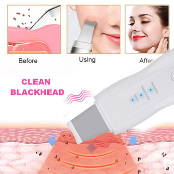 Vibrating Deep Face Cleaner Machine 3
