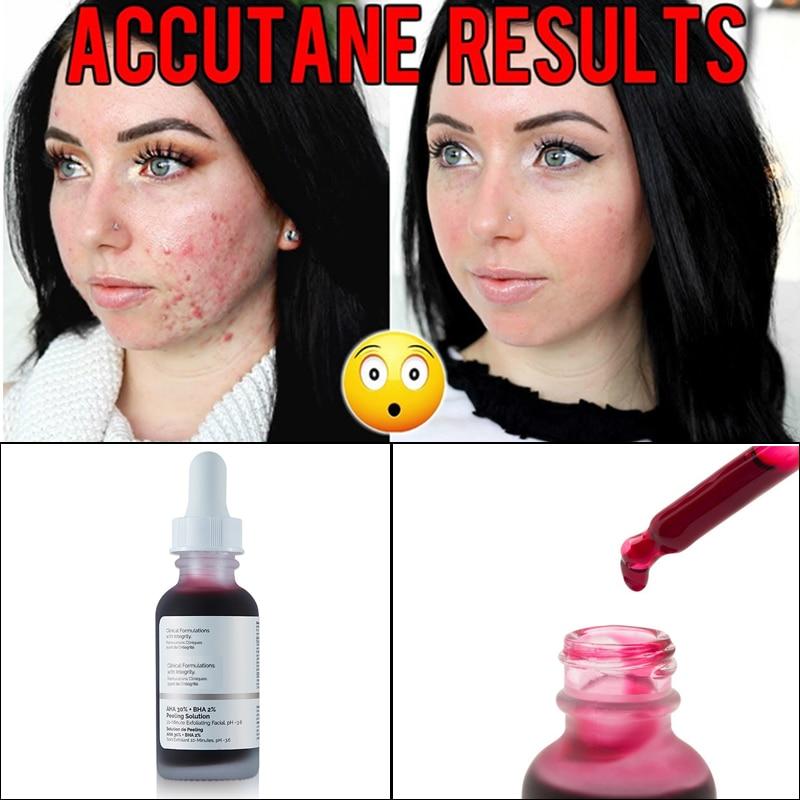 10-Minute Exfoliating Face The Ordinary Serum AHA 30%+ BHA 2% Peeling Solution 30ml Facial Serum Remove Acne Scars Whitening