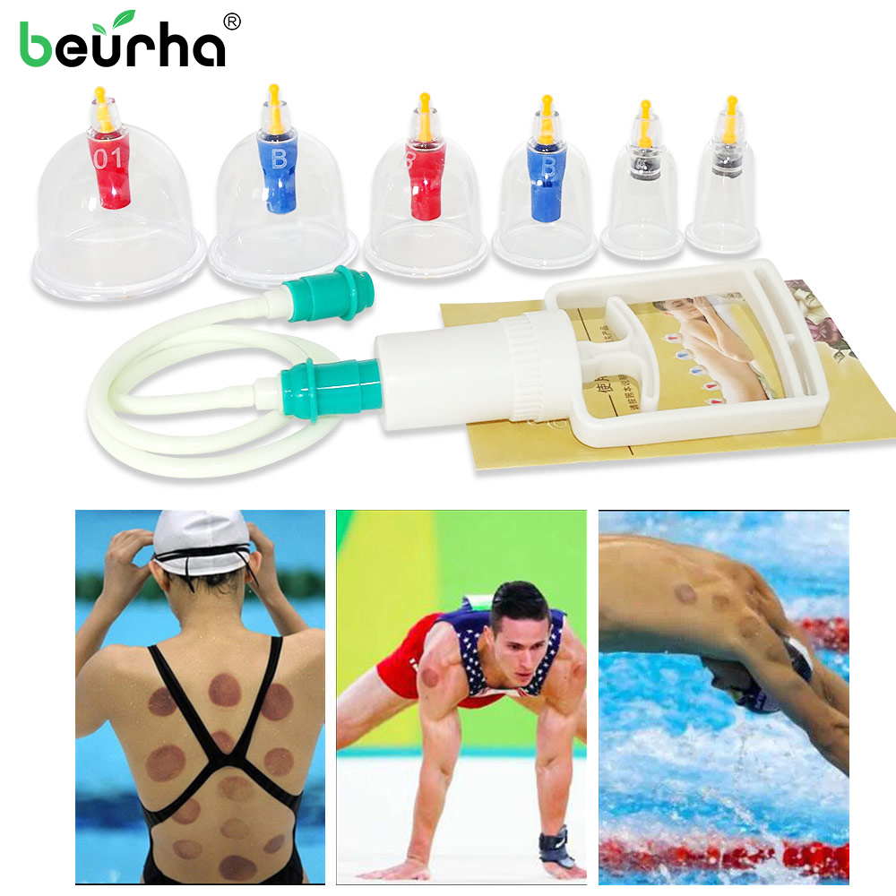 Cupping-Cup Anti-Cellulite Vacuum-Cans Massage Back-Body Medical 6-Cups Chinese Portable