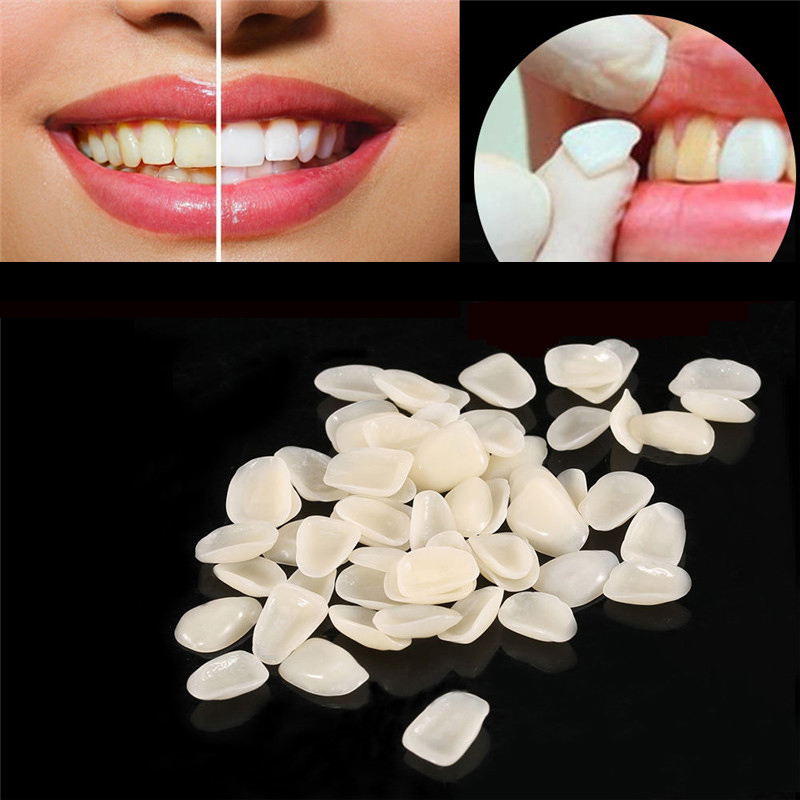 70pcs/bag Dental Ultra-Thin Resin Teeth Veneers Anterior A1 A2 Dental Temporary Crown Teeth Dentist Materials Dental Tools