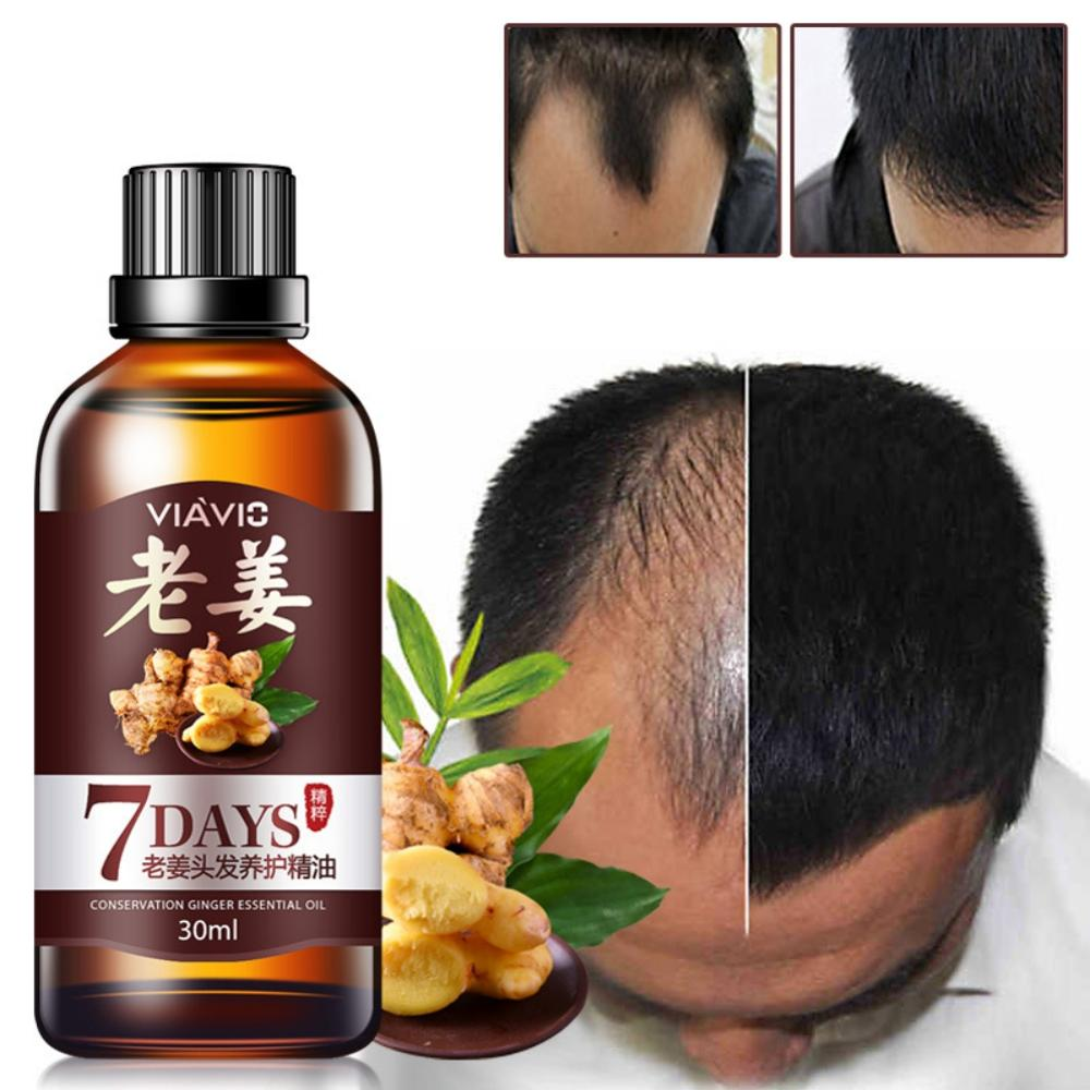 30ml 7 day Fast Hair Growth Essential Oil Effective Hair Loss Treatment Regrowth Ginger Serum Hair Health Care Beauty image