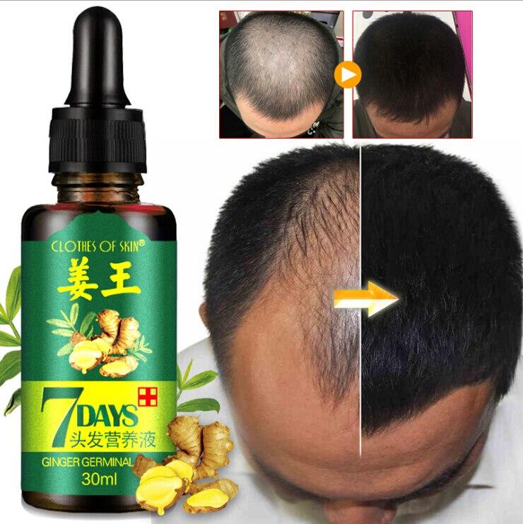 Эффективная сывороточная эмаль для роста волос 30 мл, сывороточная Сыворотка для восстановления роста волос на 7 дней, Имбирная Сыворотка дл...
