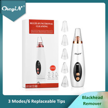 CkeyiN Microdermabrasion Vacuum Suction Blackhead Remover Facial Pore Cleaner Face Acne Comedone Extractor Pimple Removal Tool