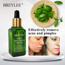 BREYLEE Acne Treatment Serum Face Facial Essence Anti Acne Scar Removal Cream Sk