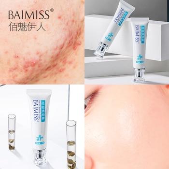 BAIMISS Acne Treatment Cream Anti Acne Remover Facial Repair Comedone Pimple Quickly Natural Herbal Remove Scar Gel Skin Care
