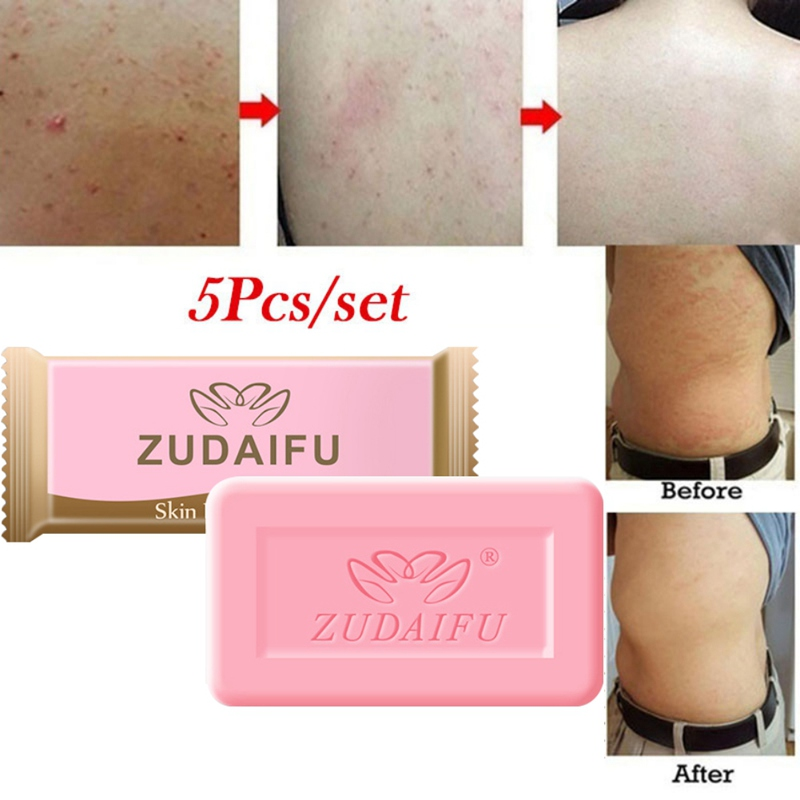Sulfur Soap Anti-mites Anti-acne Soap Gift Set Control Oil Cleaning Pores Body Cleansing Soap Soap Base Skin Care*s