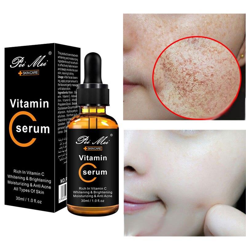 Vitamin C20 Face Serum Whitening Brightening Moisturizing Anti Acne Anti Aging Reduces Age Spots Anti Freckles Fade Dark