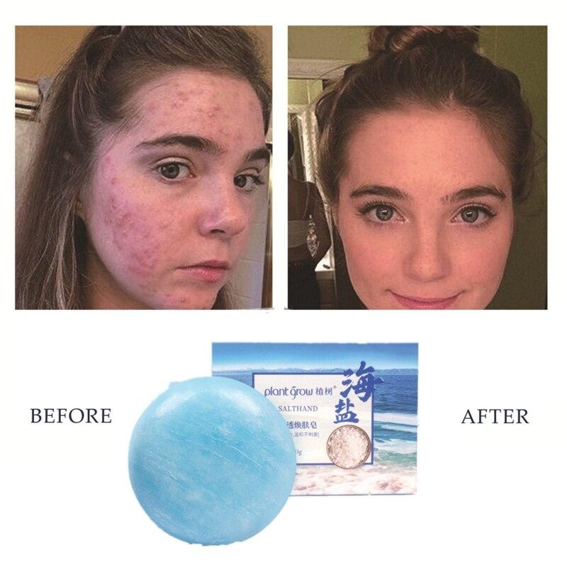 Sea Salt Soap Cleaning Skin Anti-mite Oil-control Firming Skin Moisturizing Handmade Soap For Body Face Skin Care-u