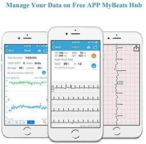 Image 5 - Monitor portátil dos sinais vitais viatom checkme lite oxímetro de pulso handheld com app & relatório do pc, ecg/eckg monitor
