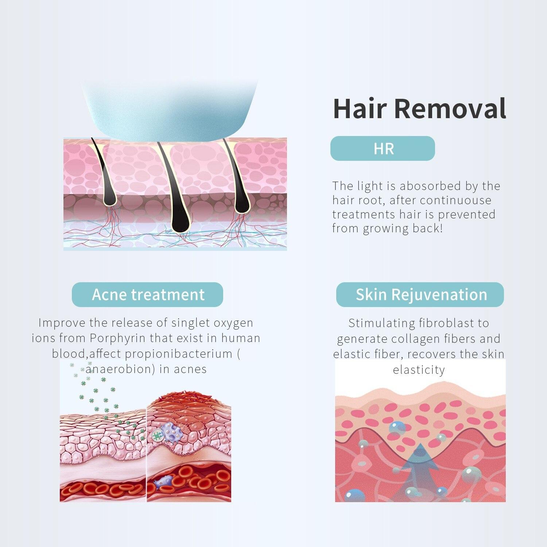 sistema de remoção do cabelo depilador indolor