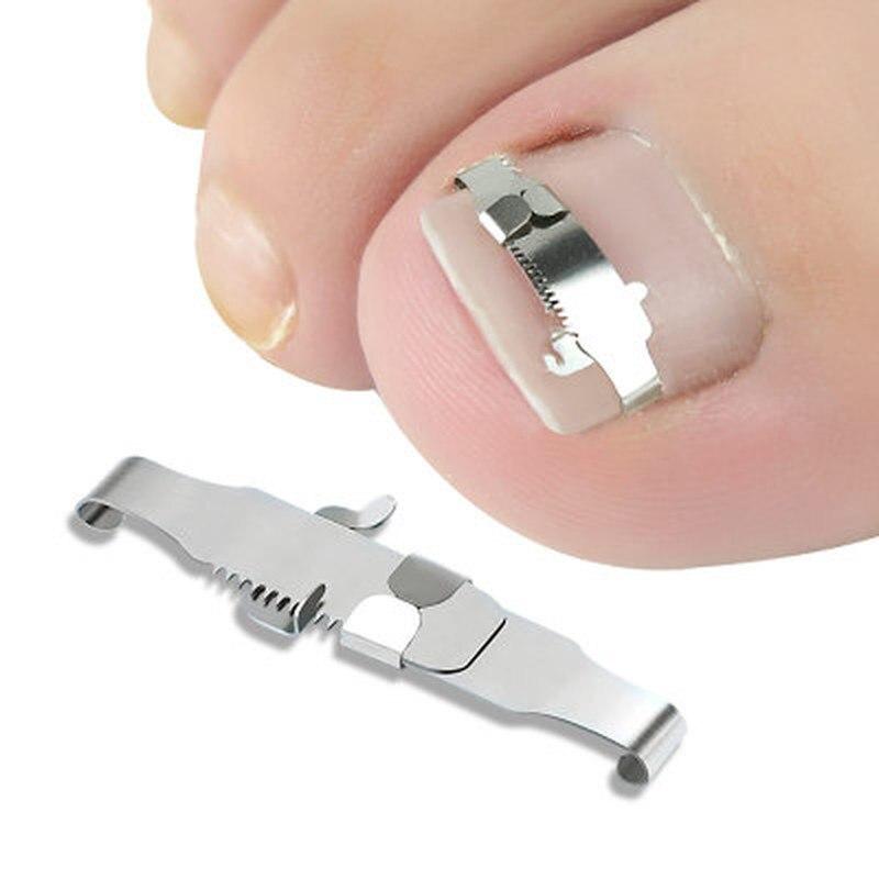 Корректор для вросших ног, ортопедическая искусственная коррекция ногтей, лечение, инструменты для ухода за ногами, восстанавливающий встр...