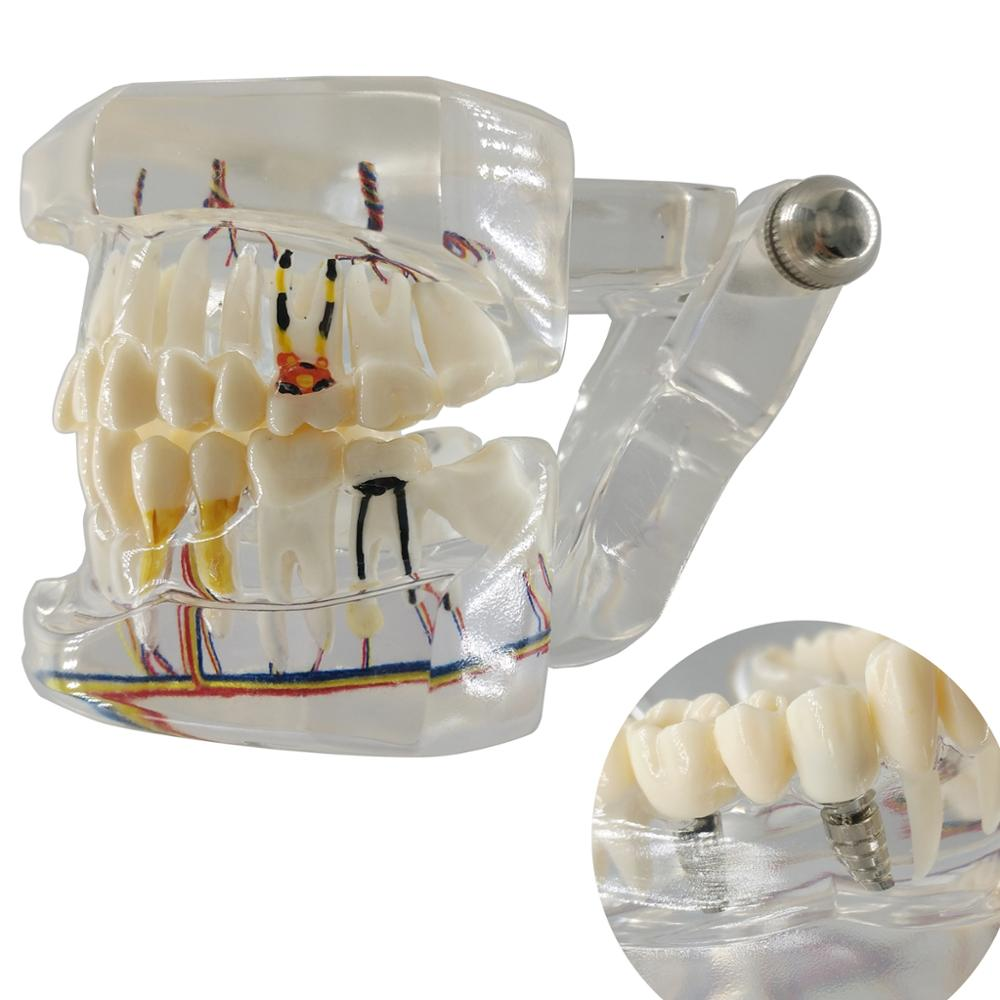 High Quality Dental Teeth Model Transparent Pathological Implant Nerve Model Repair Model Teaching Demonstration Model