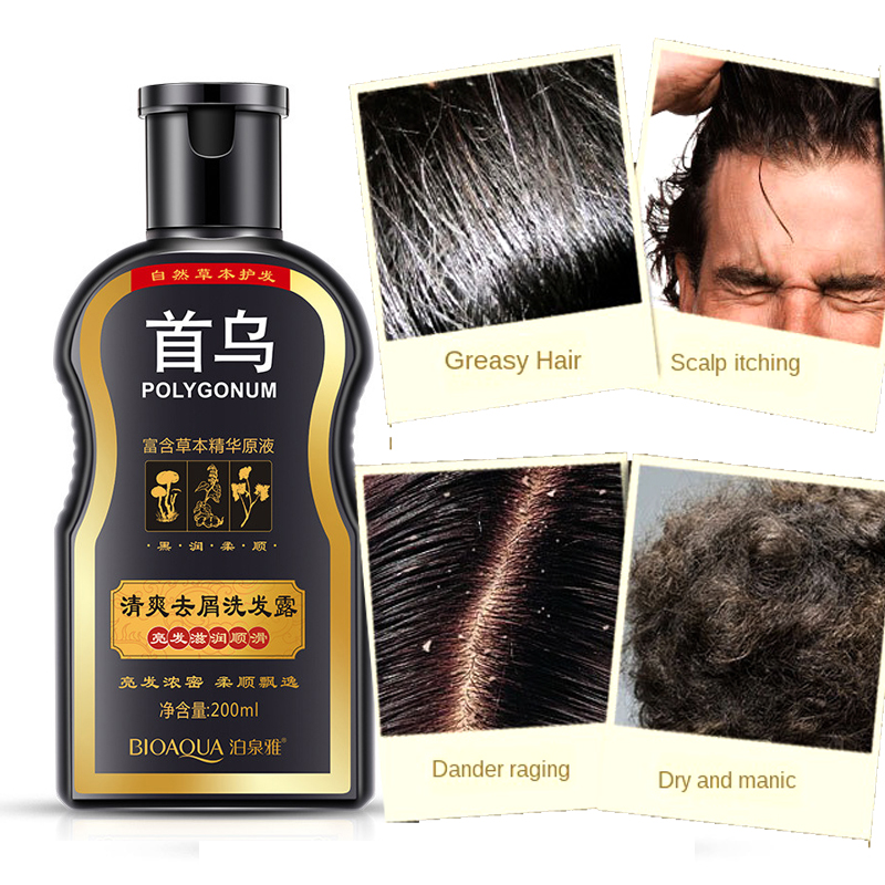 BIOAQUA Polygonum Multiflorum Anti-dandruff Shampoo Nourishing Ufa Chinese Herbal Hair Growth Repair Damaged Rough Dry Hair image