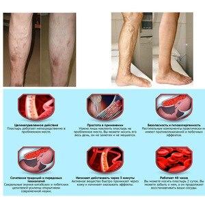 Image 5 - Sıcak satış çin doğal bitkisel ilaç varisli damarlar merhem vaskülit inflamasyon bacak masajı varisli damarlar krem