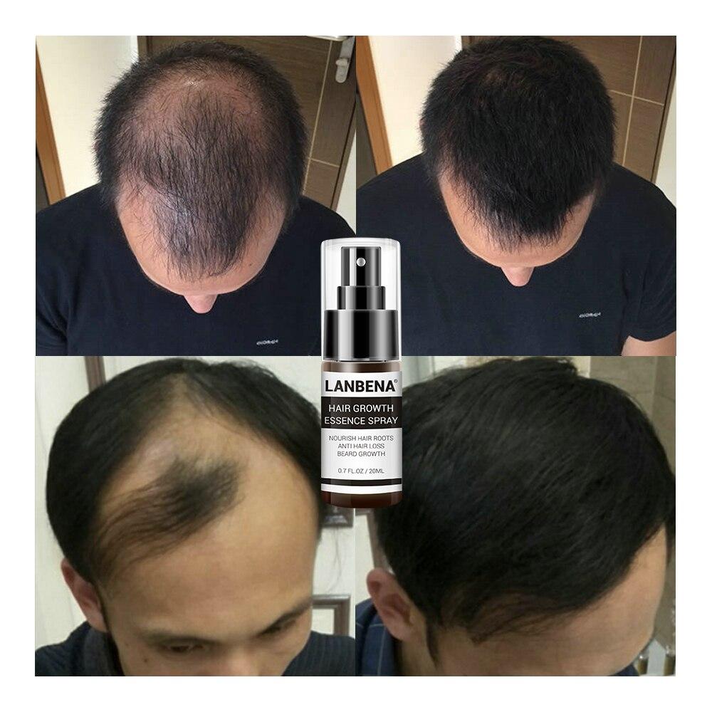 Fast Natura Hair Growth Spray Essence Liquid Dense Regrowth Essence Treatment Preventing Baldness Consolidating Anti Hair Loss Онихомикоз
