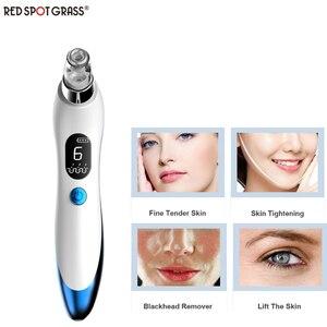 Image 1 - 真空ポアクリーナーフェイスクリーニングにきび除去ツールにきび毛穴にきび除去洗顔美容顔マシン