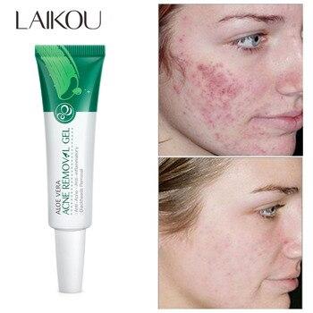 Gel de tratamiento para el acné, suero facial hidratante con ácido hialurónico,...