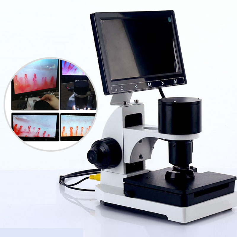 Nailfold Capillary Microcirculation Detector Digital Microscope Blood Microcirculation Instrument LCD Display Optional