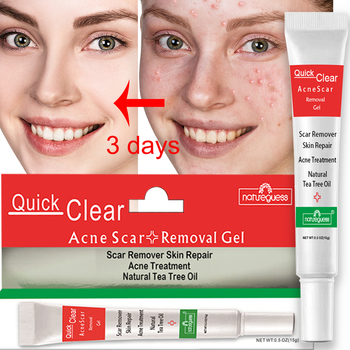 Acne Treatment Face Cream Scar Blackhead Remover Repair Gel Oil Control Shrink Pores Whitening Skin Care Korean Cosmetics