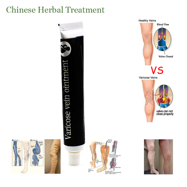100% Varicose Veins Treatment Cream Ointment Vasculitis Phlebitis Spider Pain Varicosity Angiitis Remedy Removal Herbal Cream 1
