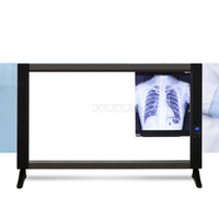 X ray Film Viewer Illuminator Light Ultra thin Double Xray Viewer Light Panel Screen Equipment 110 240V 24W 76x50.6cm