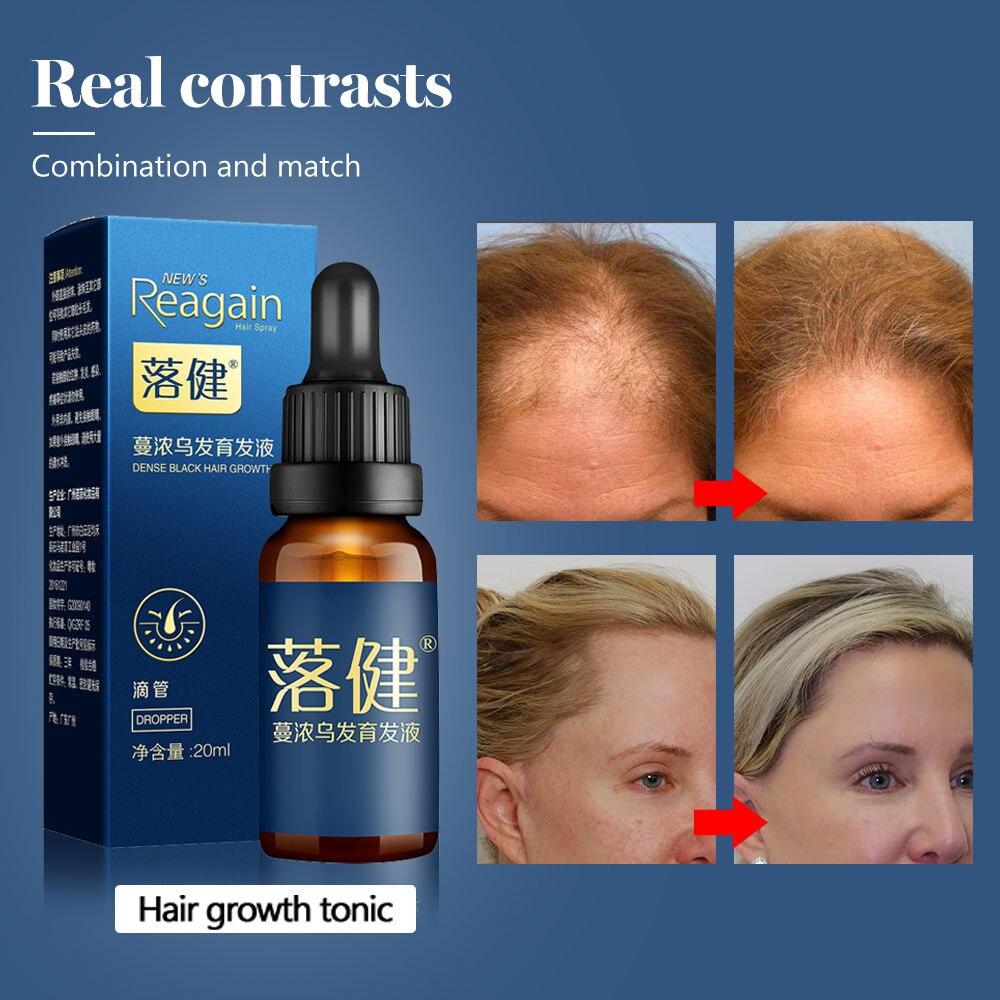 Hair Care Hair Growth Essential Oil Essence Hair Loss Liquid Treatment Health Care Beauty Dense Hair Growth Serum for Men Women 5