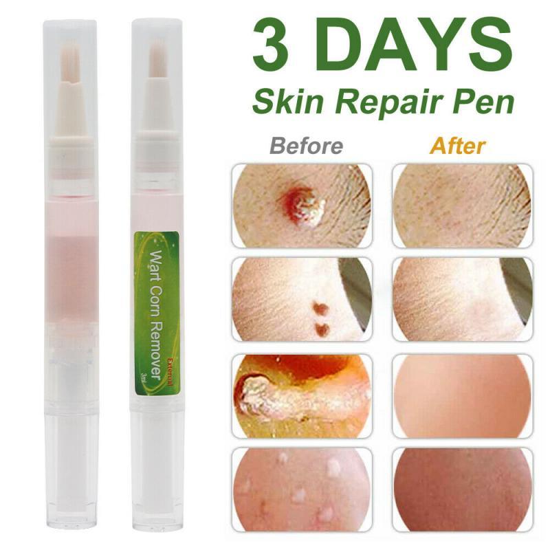 1 шт., 3 дня, ручка для удаления кожи, бородавка, ручка для удаления веснушек, бородавка, средство для удаления черных точек, средство для ухода...