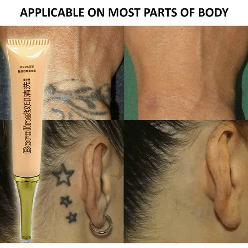 Permanent Tattoo Removal Cream No Need For Pain Removal Maximum Strength