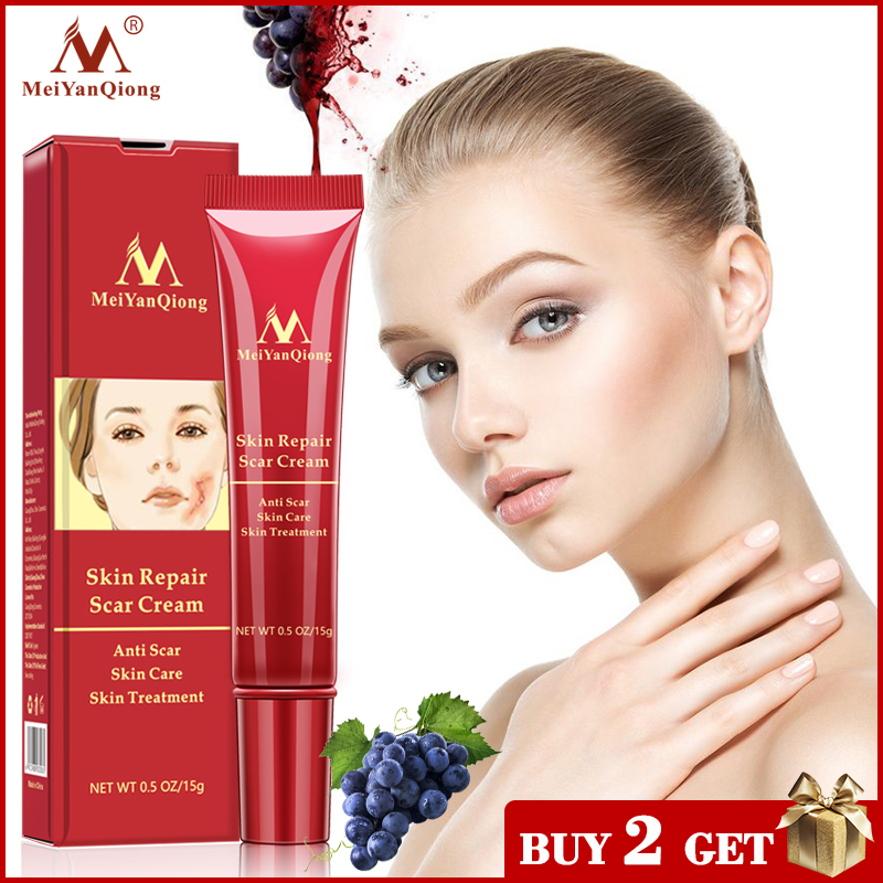 Acne Scar Removal Cream Skin Repair Face Cream Acne Spots Acne Treatment Blackhead Whitening Cream Anti Scar Stretch Marks 15g