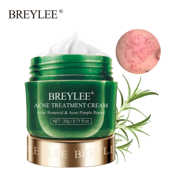 BREYLEE Acne Treatment Face Cream Anti Acne Pimple Removal Spots Oil Control Shrink Pores Moisturizing Whitening Skin Care 20G 1
