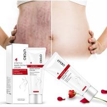 Smooth Skin Cream Fat wrinkles Pregnancy Removal To Maternity Skin Repair Body Cream Soft Skin Stretch Marks Scar Removal Creams