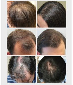 Image 4 - Cuidados com o cabelo crescimento do cabelo óleos essenciais essência original autêntico 100% perda de cabelo líquido cuidados de saúde beleza densa crescimento do cabelo soro