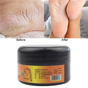 1pcs Horse Oil Feet Cream Heel Cream for Athlete's Foot Feet Mask Itch Blisters Anti-chapping Peeling Repair for Foot Care Cream feet o p i asa02 foot care cream gel masks deodorants