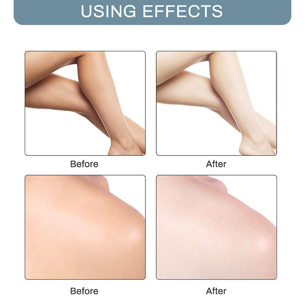 10 Секунд Отбеливание Крем Ноги Колени Личное Части Тело 60 мл Беллезон Подмышки Отбеливание Крем