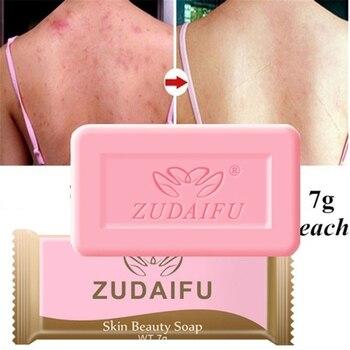 1/5pcs Zudaifu Sulfur Soap Anti-mites Anti-acne Body Cleansing Soap Skin Treatment Acne Psoriasis Seborrhea Eczema Anti Fungus 1