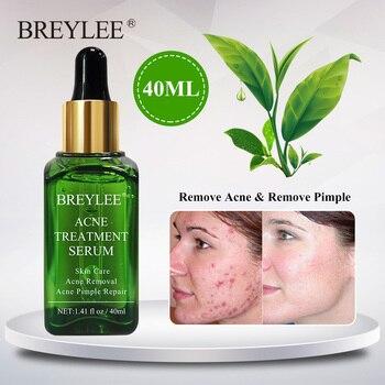 BREYLEE, tratamiento para el acné, suero Facial, eliminación de esencia para el rostro, crema para cicatrices, antiacné, espinillas, blanqueador, cuidado de la piel del acné, 40ml