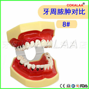 Good quality Swollen gums model Doctor-patient communication dentures teeth model for dentists learning image