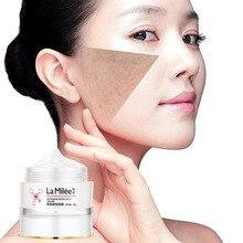 Freckles Whitening Cream Anti Aging Face Cream Care Melasma Acne Blemishes Dark