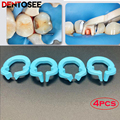 4Pcs Dental Resin Clamping/Seperating Ring Dentist Tools Autoclavable For Dental Lab Instrument