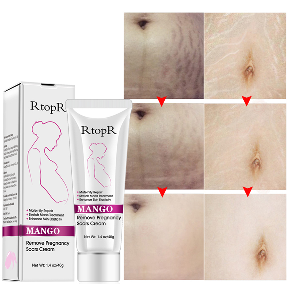Enhance Elasticity Firming Maternity Repair Abdomen Remove Scar Body Slack Skin Care Stretch Mark Cream Anti Winkle Pregnancy