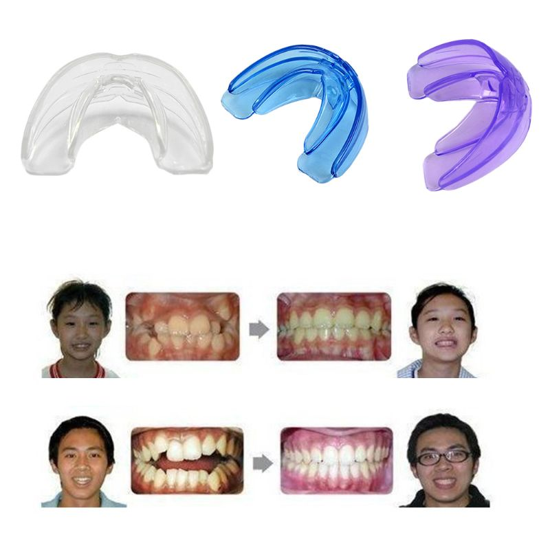 Tooth Dental Orthodontic Appliance Trainer Professional Alignment Straightening Brace Teeth Corrector Mouth Guard for Adult 875C