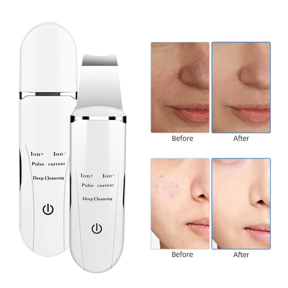 Ultrasonic Facial Deep Cleaning Skin Scrubber Peeling Shovel Face Pore Cleaner Blackhead Removal Lifting Beauty Salon Equipment