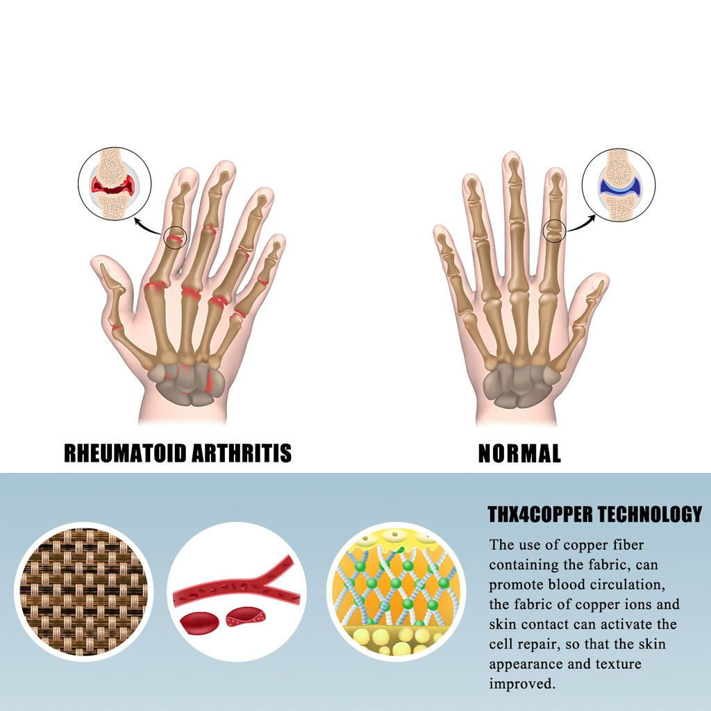 WorthWhile 1 Pair Compression Arthritis Gloves Wrist Support Cotton Joint Pain Relief Hand Brace Women Men Therapy Wristband 2