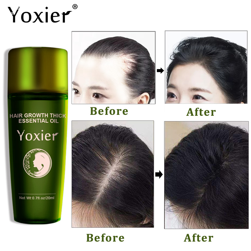 Hot Sale Fast Hair Growth Essence Fast Powerful Hair Loss Product Beard Oil Growth Serum Oils Hair Growth Treatment Hairs Care