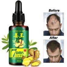 7 dias de crescimento do cabelo germinal soro essência óleo queda de cabelo tratamento crescimento do cabelo para homens mulher para o reparo do cabelo danificado natural hai