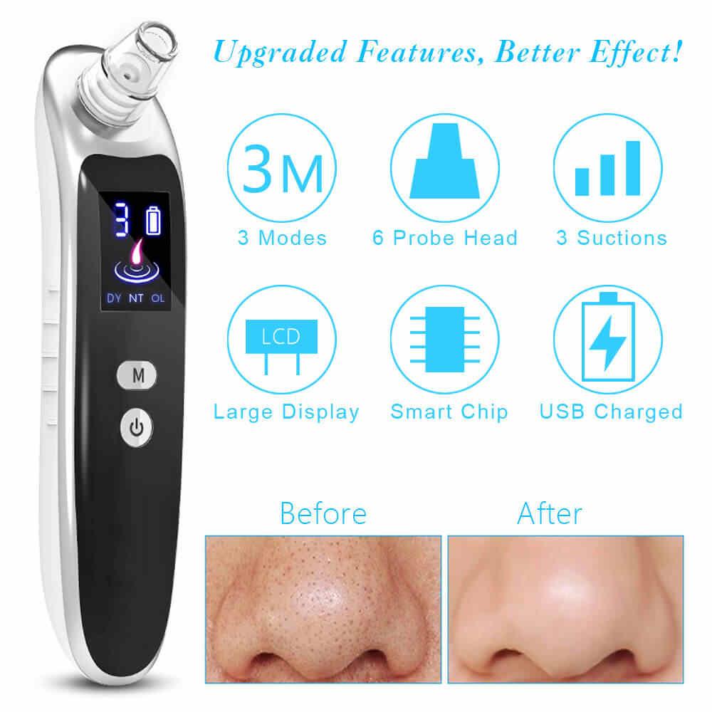 顔にきび除去真空吸引孔にきび針ピンセット抽出鼻スキンクリーナーマッサージツールセットスパフェイシャルスチーマー
