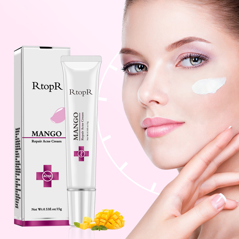 RtopR Mango Cream Acne Brightening Serum Acne Scar Spots Cleaning Serum Shrink Pores Eliminates Acne Treatment Oil Control